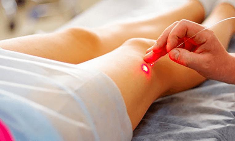 Эндовазальной лазерной облитерацией вен