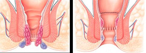 геморой симптомы и протекание заболевания