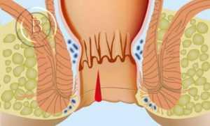 Причины, симптомы и лечение анальной трещины
