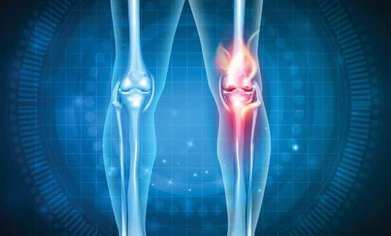 Ревматоидный артрит коленного и тазобедренного суставов