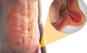 Как диагностировать паховую грыжу у мужчин