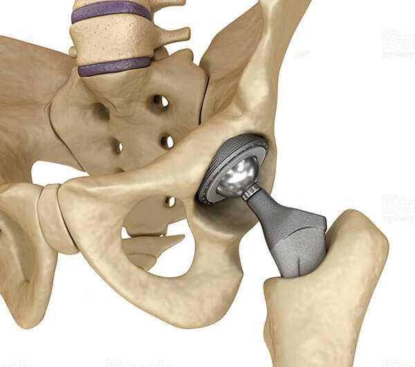 Лечение деформирующего артроза тазобедренного сустава