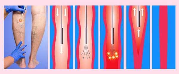 Эндовазальная лазерная терапия