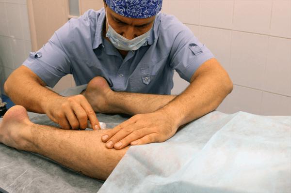 Возможные осложнения варикоза вен