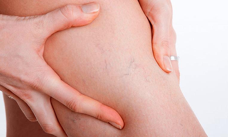 Признаки варикоза у женщин и мужчин