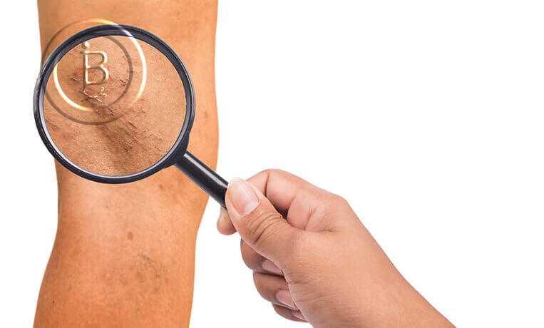 Симптомы, диагностика и лечение варикоза