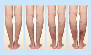 Степени стадии и формы варикоза