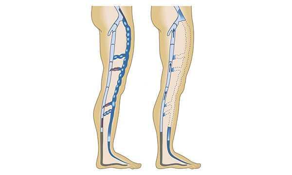 Какие операции проводят при варикозном расширении вен на ногах
